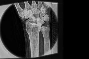 Рентген научили видеть соринку в глазу